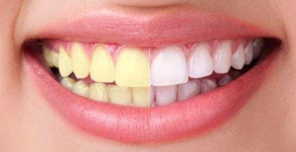 mejores kit de blanqueamiento dental